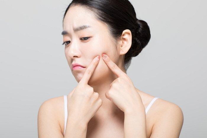 d1ko8fpj73spn4wz27p0 - 건강에 이상이 생겼다는 것을 알려주는 얼굴 '여드름 위치' (+6)