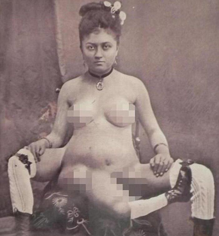 足と性器が複数ある女性 ブレンチ・ドゥーマス