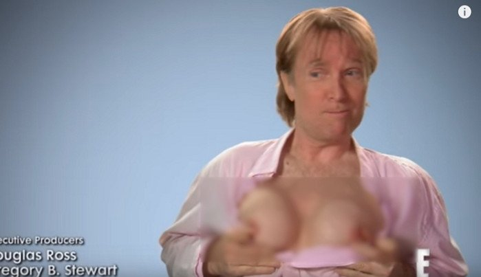 男性の豊胸手術