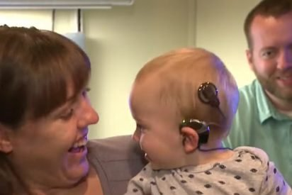 cochlear 412x275.jpg?resize=412,275 - Baby Heard His Parents' Voices For The First Time And His Reaction Is Melting People's Hearts