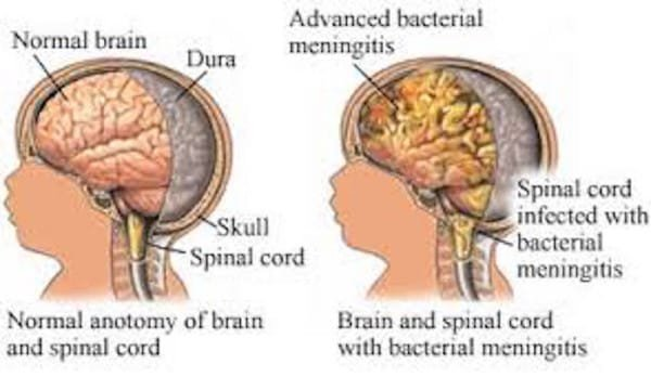 Image via Your Health Educator
