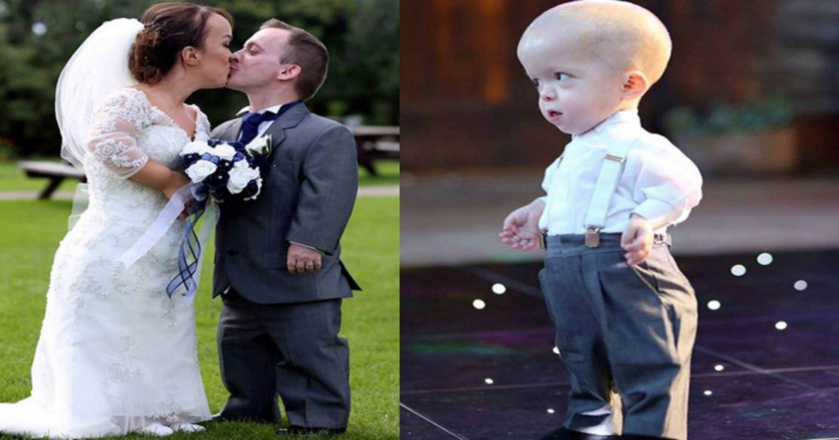 double dwarf baby wedding 1.jpg?resize=1200,630 - Mother Was Told To Abort Her Baby But She Refused After Looking At The Sonogram
