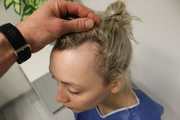 receding hairline 2 - Boyfriend Wonders Why She Won't Wear Her Hair Back.. Then, He Sees The Painful Truth