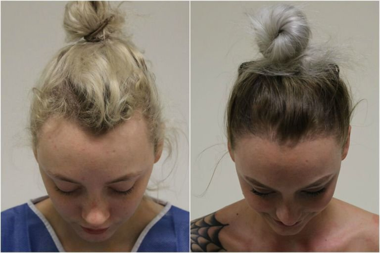 receding hairline - Boyfriend Wonders Why She Won't Wear Her Hair Back.. Then, He Sees The Painful Truth