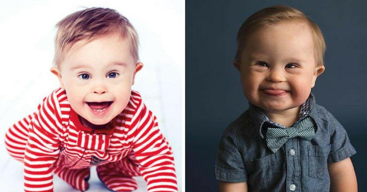 avant 2 1.png?resize=1200,630 - Vidéo: Asher, le bébé trisomique devenu mannequin pour une marque de vêtements