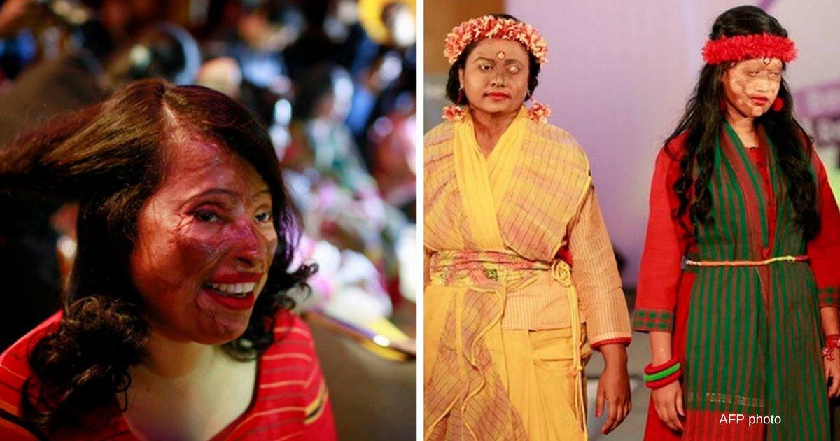 reuters clodagh kilcoyne 1.png?resize=1200,630 - Bangladesh: des femmes victimes d'acide défilent sur un podium