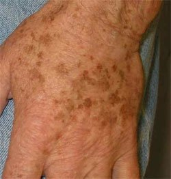 Image via Toronto Dermatology Center