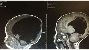 baby with no brain cover 300x169 - He's Born With No Brain.. But 3 Years Later, Doctors In Shock When They See His Scans