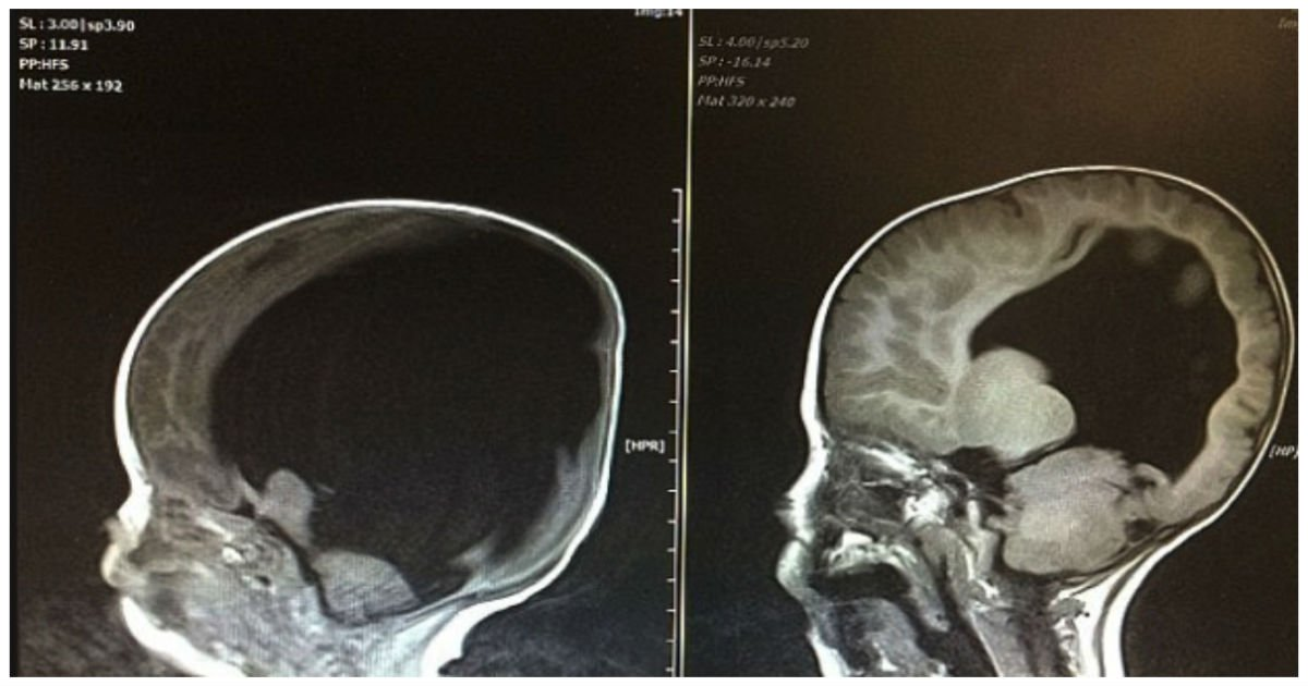 baby with no brain cover.jpg?resize=1200,630 - Baby Born With Almost No Brain Is Thriving After His Brain Started Growing Following His Birth