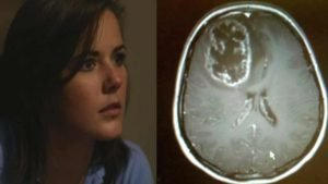 brain-tumor-polio