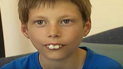 bucktoothed kid transformation 412x232.jpg?resize=412,232 - Boy Who Faced Constant Bullying Because Of His Teeth Now Finally Smiles With Confidence