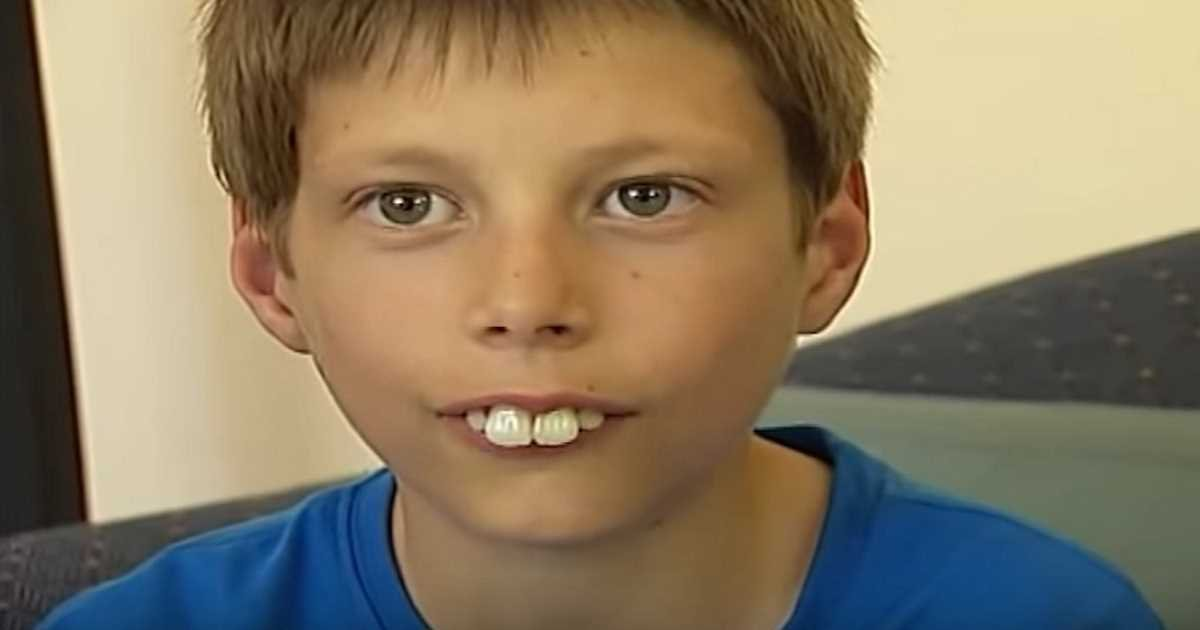 bucktoothed kid transformation.jpg?resize=1200,630 - Boy Who Faced Constant Bullying Because Of His Teeth Now Finally Smiles With Confidence