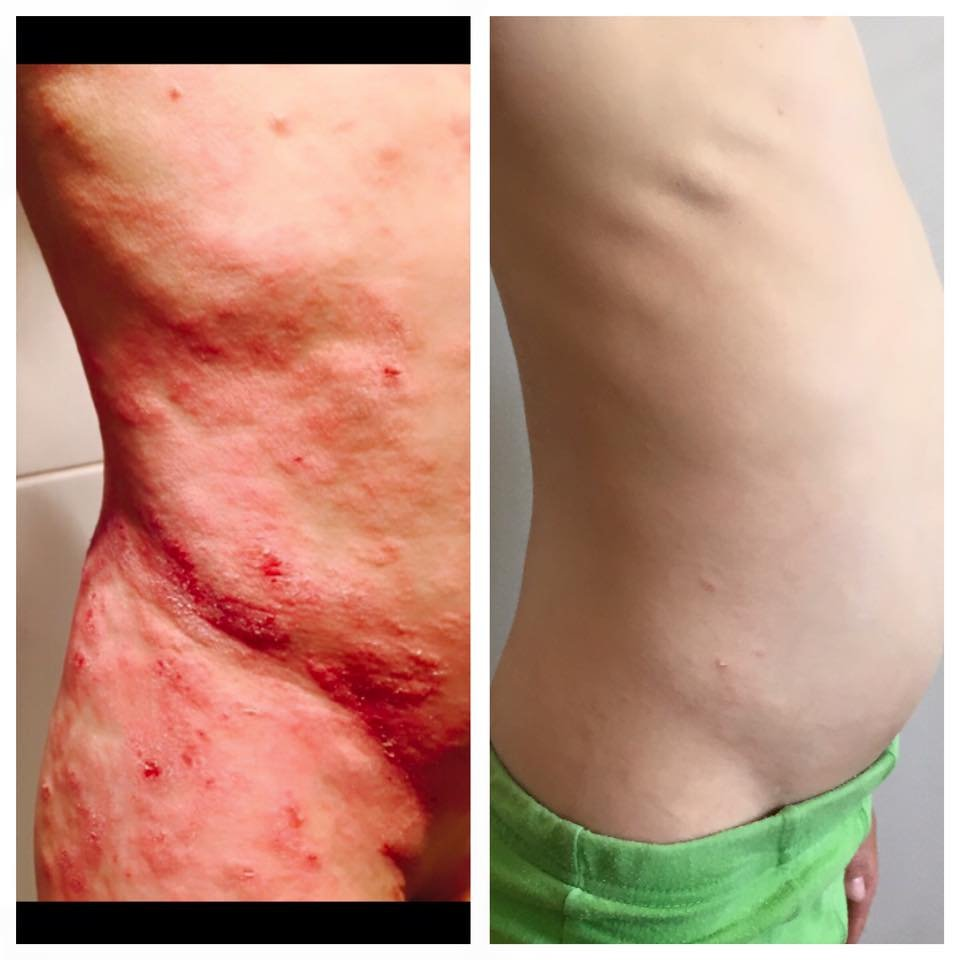 The Eczema covered Tyler's entire body. Image via Debbie Maddalena-Saunders / Facebook