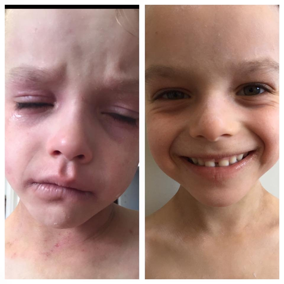 eczema tyler 4 - Son Suffers From Severe Eczema For Years Until One Day Mom Finds An Unlikely Cure. Now He's Completely Unrecognizable!