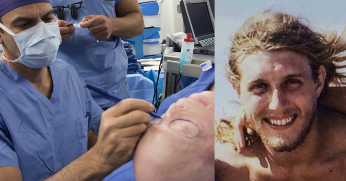 face transplant firefighter.jpg?resize=1200,630 - After A Risky 26-Hour Surgery, Burned Firefighter Looks Totally Unrecognizable Thanks To This Man