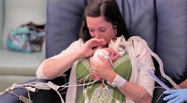 premature sons first year 3.jpg?resize=1200,630 - Ce bébé pesait 700 grammes à la naissance, un an plus tard il étonne tout le monde