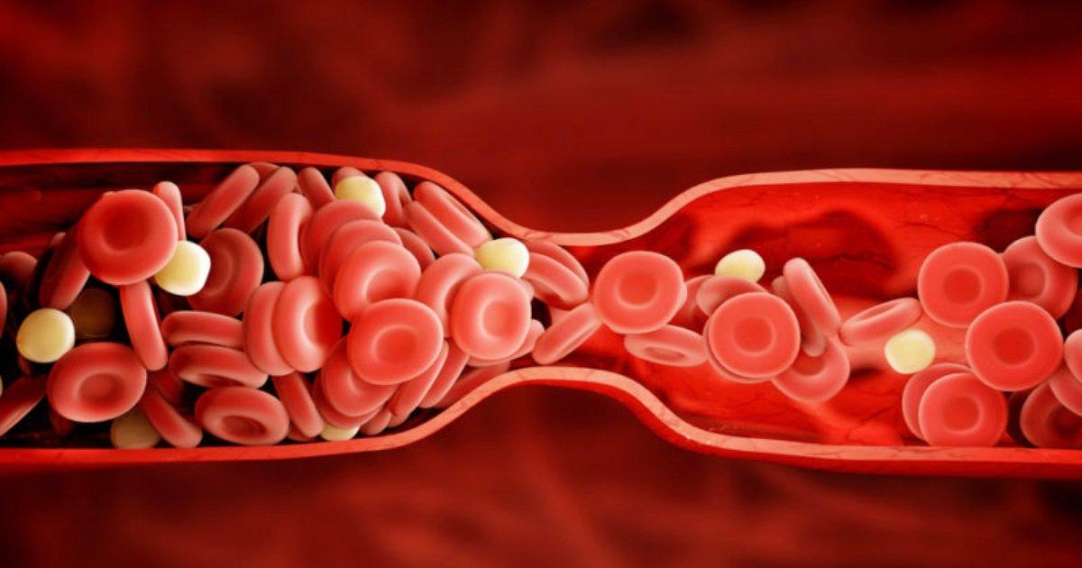 blood clot e1463494175829 - 8 signes qui montrent que vous avez peut-être un caillot de sang