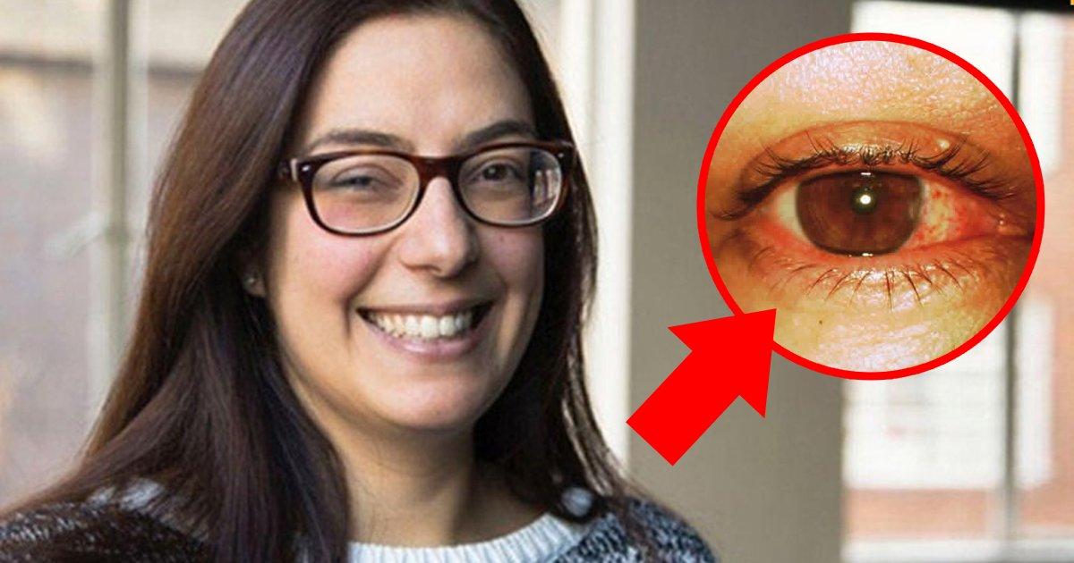 4 43.jpg?resize=1200,630 - 어느날 갑자기 시력을 잃은 여성... 그 원인에 모두 '경악'