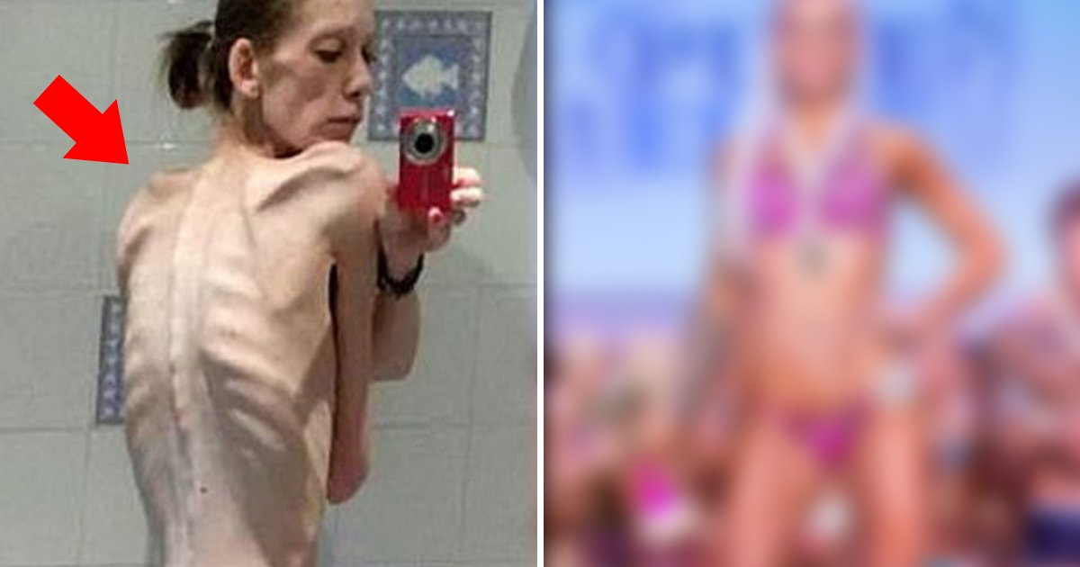 belly 2473 960 720 3.jpg?resize=412,275 - '생리'도 멈췄던 그녀가 18개월 후 사람들을 모두 '깜짝' 놀래킨 엄청난 '변신'