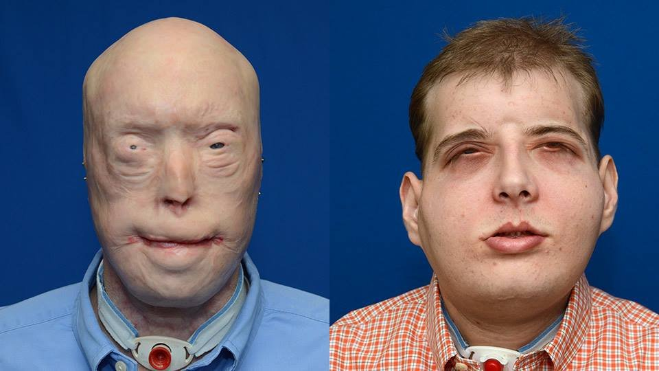 ntd patrick hardison fireman after surgery 6 1 - 여성을 구하려다 '얼굴'을 잃은 소방관... 새 얼굴을 선물받다 (영상)