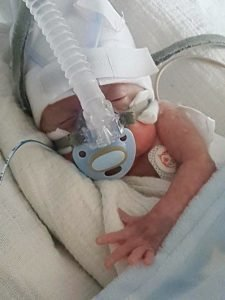 swns_premature_baby_025