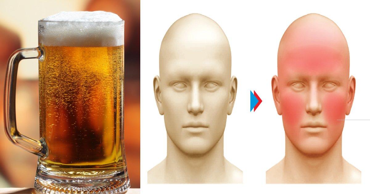 "thumbnail 5.jpg?resize=412,232 - ""술 마시고 얼굴 '홍시'되면 당장 술을 '끊으라'는 경고의 '신호'이다"""