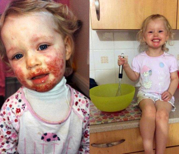 피부병을 앓던 모습(좌1), 치료 후 모습(좌2) / Caters News Agency