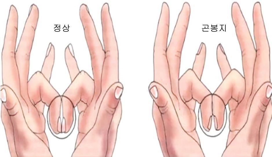 1708260303 1 - 손톱이 '굽은 모양'을 하고 있다면 '이 질환'을 의심해 봐야…