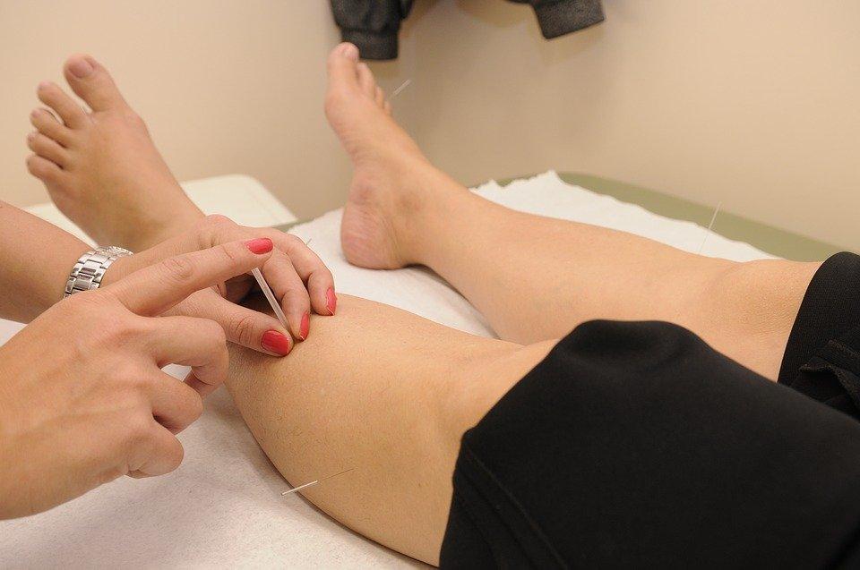 acupuncture 1698832 960 720 - '치맥' 좋아한다면? 조심해야 할 6가지 질병
