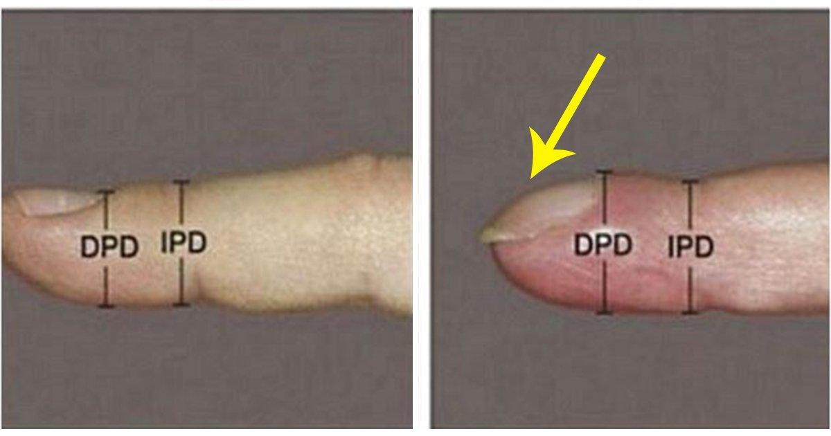 article thumbnail 25.jpg?resize=1200,630 - 손톱이 '굽은 모양'을 하고 있다면 '이 질환'을 의심해 봐야…