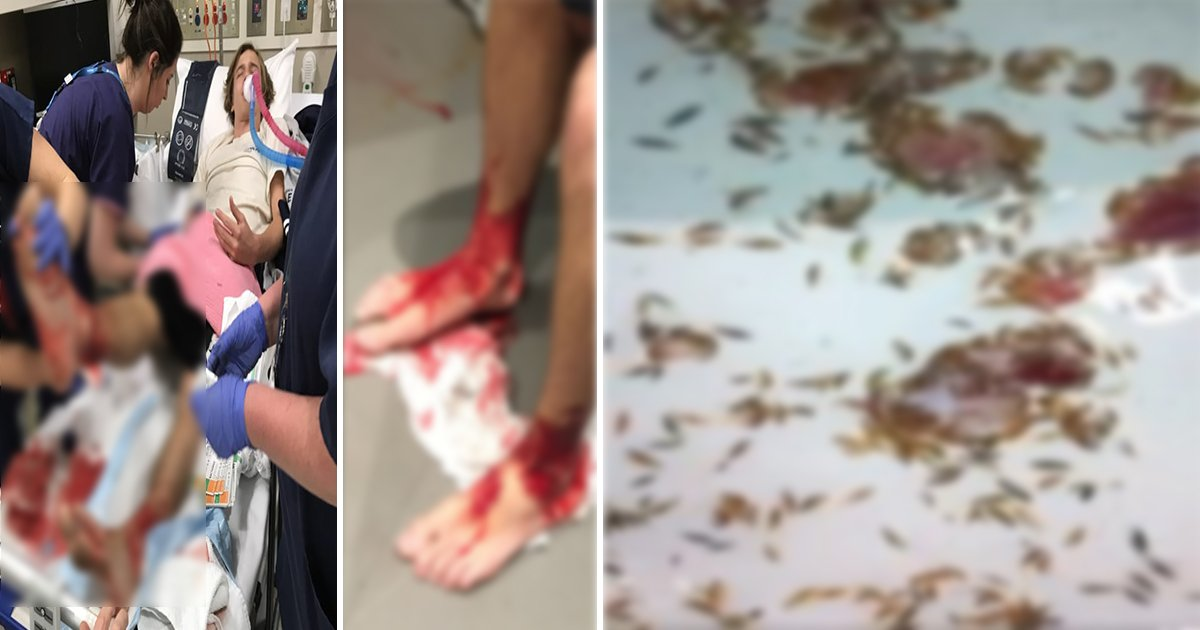 article thumbnail222.jpg?resize=412,232 - 해수욕장 갔다가 사람 피부 파먹는 '괴생명체'에 공격 당한 소년