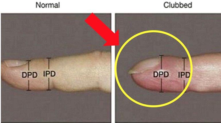 e18489e185b3e1848fe185b3e18485e185b5e186abe18489e185a3e186ba 2017 08 11 5 46 47 pm - 「爪」が曲がっていたら「この病気」になっているかもしれない