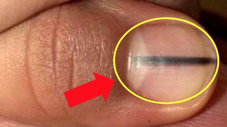 e18489e185b3e1848fe185b3e18485e185b5e186abe18489e185a3e186ba 2017 09 04 10 13 56 am.png?resize=412,232 - 爪に「黒い線」があったら「この疾患」なのかもしれない?