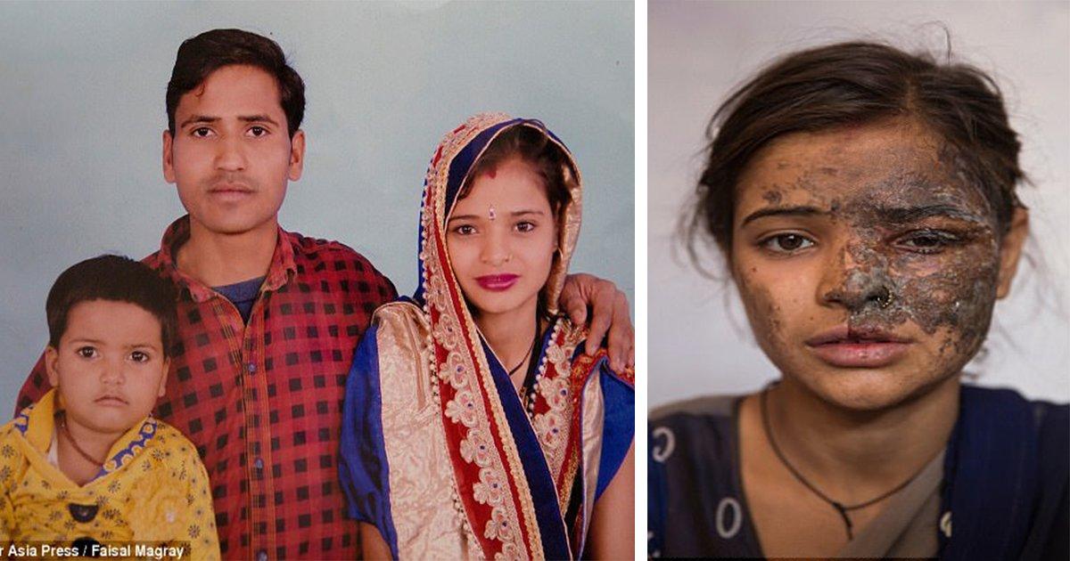 ec97bcec82b0ed839ceb9fac - 어린 여자아이들을 '인신매매'한 사실 숨기려 친딸에게 '염산 테러'한 아버지