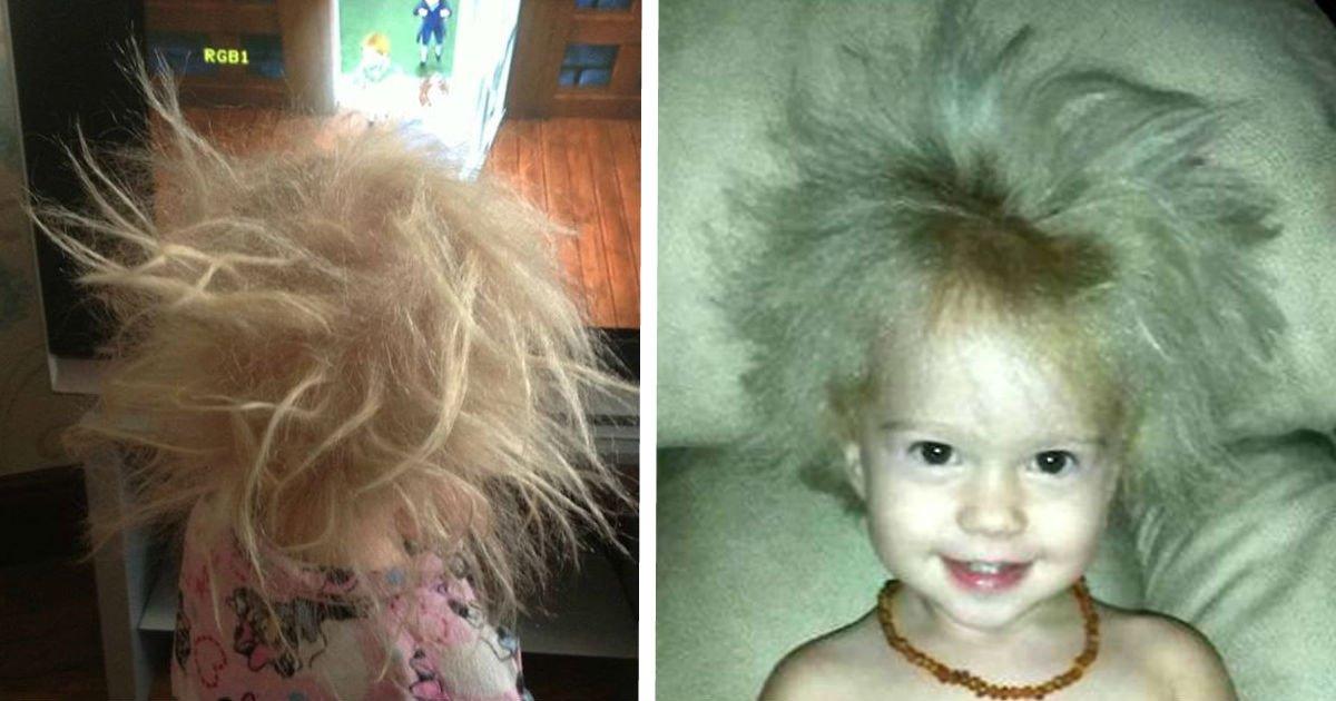 ec9db4eba684 ec9786ec9d8csfsd.jpg?resize=1200,630 - Mãe de cabelos escuros fica confusa por que sua filha tem cabelo branco - e médicos descobrem que se trata de uma síndrome rara