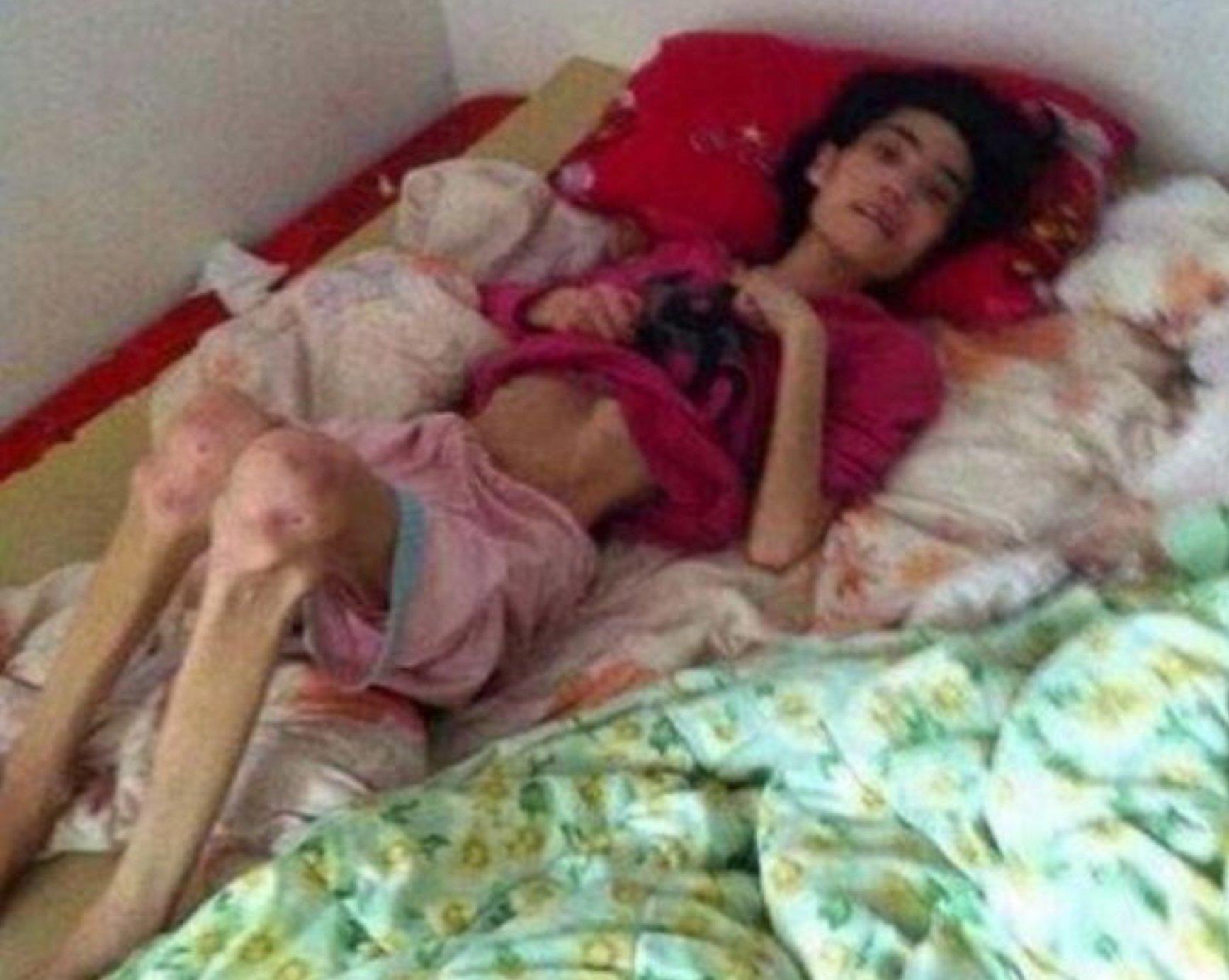 ecbaa1ecb298 - 시어머니의 학대로 체중 '18kg'의 반신불수가 된 여성...'경악'