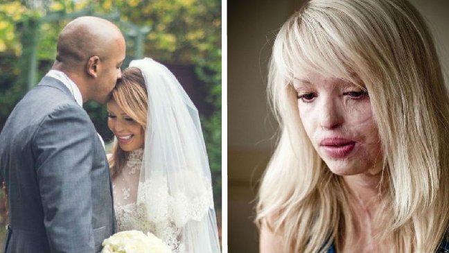 victim of abuse.jpg?resize=636,358 - Há 10 anos, eles eram um casal feliz. Agora, ela revela a verdade doentia e alerta o mundo.