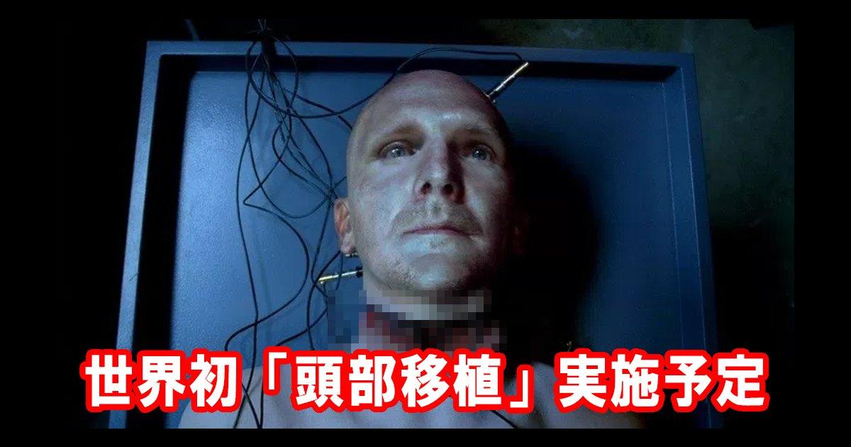brainttl - 世界初!「頭部移植」中国で実地予定・・