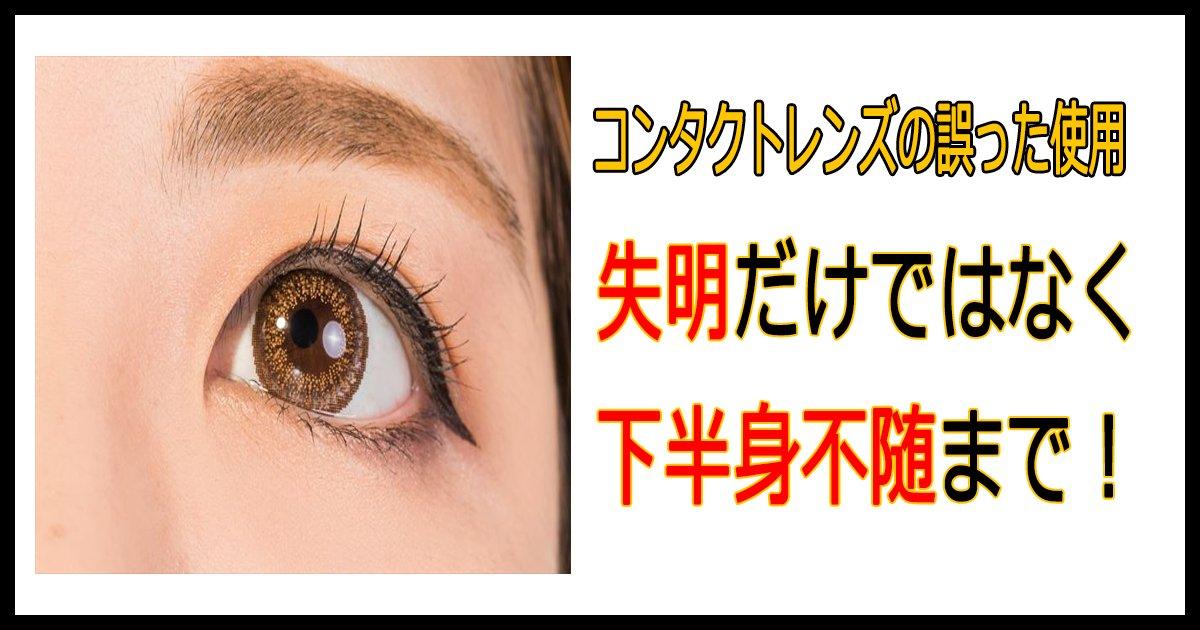 colour th.png?resize=648,365 - コンタクトレンズの誤った使用により失明だけではなく下半身不随の危険性も