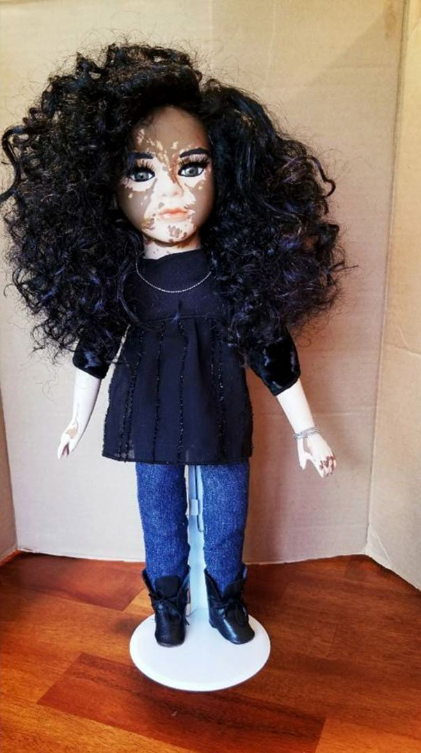 designer-creates-dolls-with-vitiligo-so-that-children-start-to-live-with-differences-in-childhood-59ca0e81aa66a__605
