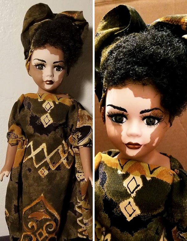 designer-creates-dolls-with-vitiligo-so-that-children-start-to-live-with-differences-in-childhood-59ca0e84068d2__605