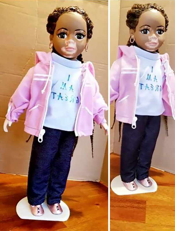 designer-creates-dolls-with-vitiligo-so-that-children-start-to-live-with-differences-in-childhood-59ca0e8bf2899__605