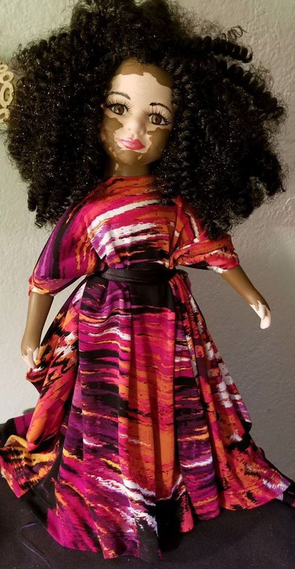 designer-creates-dolls-with-vitiligo-so-that-children-start-to-live-with-differences-in-childhood-59ca0e910df5b__605