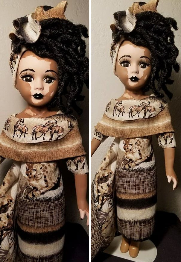 designer-creates-dolls-with-vitiligo-so-that-children-start-to-live-with-differences-in-childhood-59ca0e97304cc__605