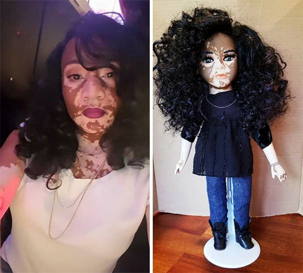 designer-creates-dolls-with-vitiligo-so-that-children-start-to-live-with-differences-in-childhood-59ca14a01a8d1__605