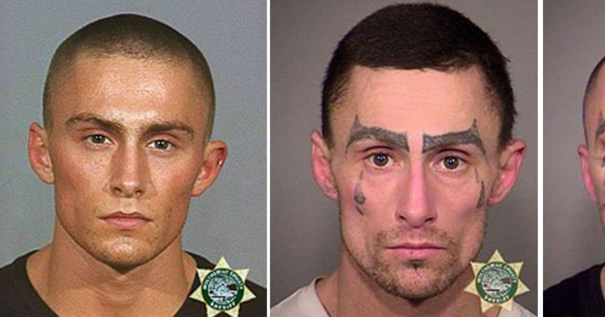doing meth for long time.jpg?resize=300,169 - Man Does Meth Continuously For 14 Years. And His Face Changes Significantly