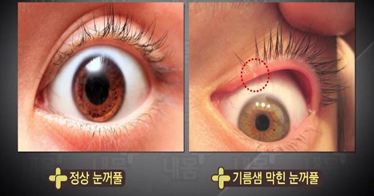 ec8db8eb84a4ec9dbc - 렌즈 착용자라면 '필수'! 꿀팁 '눈 기름짜기'