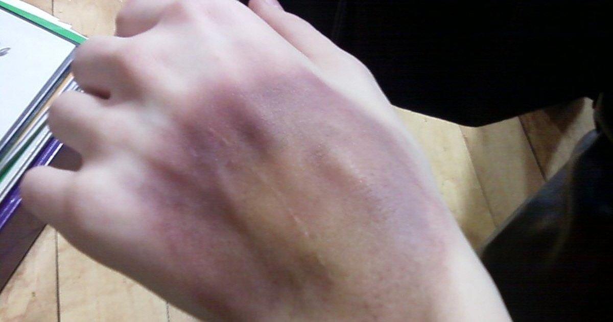i bruised my friend  s hand     by arrowkitillashwood d4mdyte - 손등에 보랏빛 '피멍'이 사라지지 않는다면 의심해봐야 하는 질병