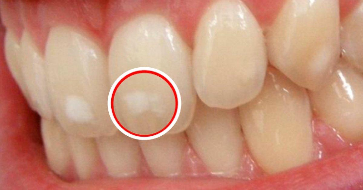 img 59a85d9cf25e3 - なんとなく目障りの歯にできる白い斑点、なぜできるのか?