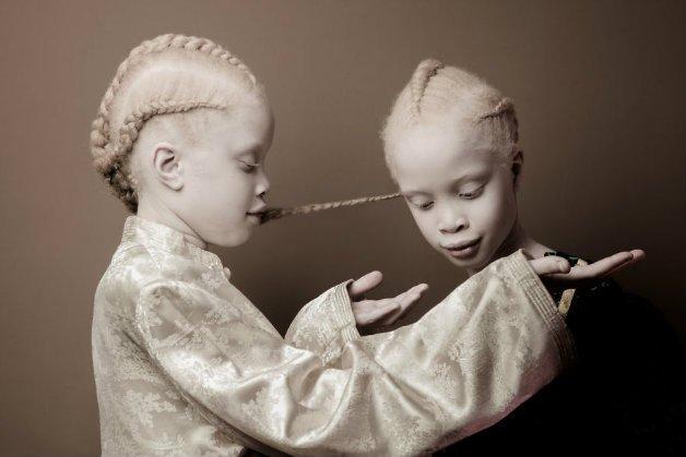 img 59ae393aa98a4.png?resize=412,232 - Conheça as gêmeas albinas brasileiras que estão arrasando no mundo da moda